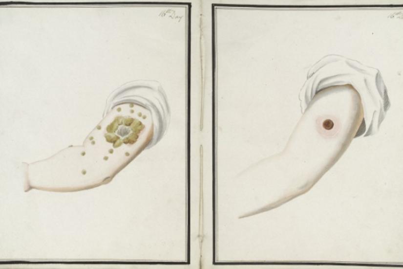 Resultate von Pocken- (links) und Kuhpocken-Inokulation (rechts) nach 16 Tagen [George Kirtland, 1802]