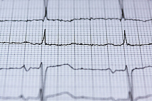 Ein gesundes Herz schlägt nicht ganz regelmäßig. Diese Herzratenvariabilität ist ein Zeichen körperlicher und psychischer Vitalität. Foto: pixabay