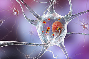 Neurodegenerative Erkrankungen, wie zum Beispiel Parkinson, können enstehen, wenn der Fettstoffwechsel des Gehirns in ein Ungleichgewicht fällt. ForscherInnen der Universität Graz und der Harvard Medical School haben nun herausgefunden, dass die Hemmung eines bestimmten Enzyms neurodegenerative Prozesse unterdrückt. Bild: shutterstock/Kateryna Kon