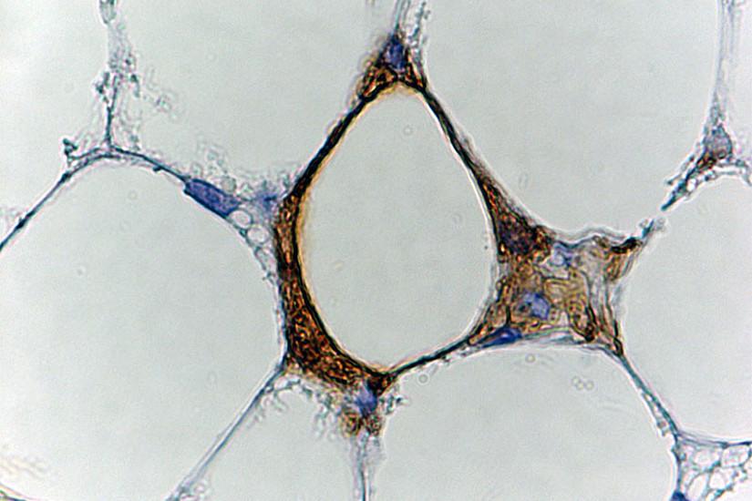 Eine weiß gewordene, ursprünglich braune Fettzelle (im Zentrum) stirbt und wird von Immunzellen (braune umgebende Struktur) aufgefressen. Foto: Uni Graz